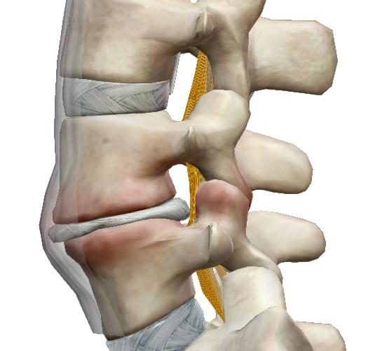 csípőfájdalom és émelygés