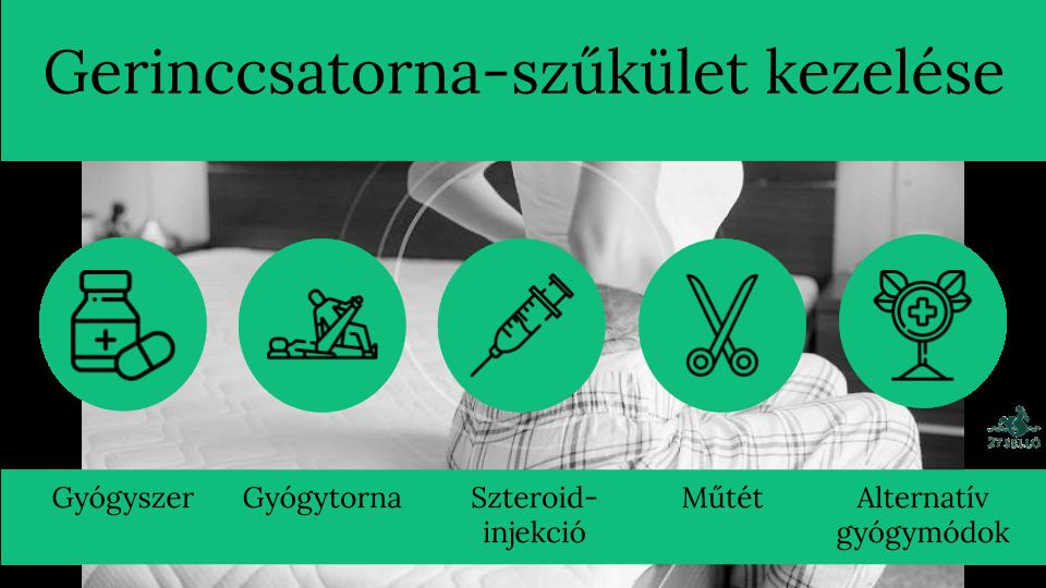 hogyan lehet kezelni a gerincvelő gyógyszereket)