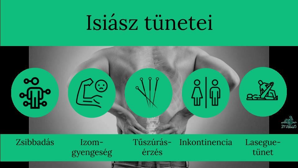 Isiász-szindróma (ülőideg-zsába) tünetei és kezelése