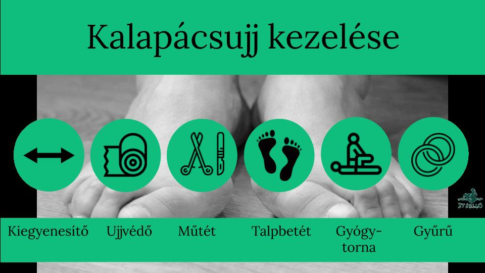 sarkallja a lábujjak kezelése között)