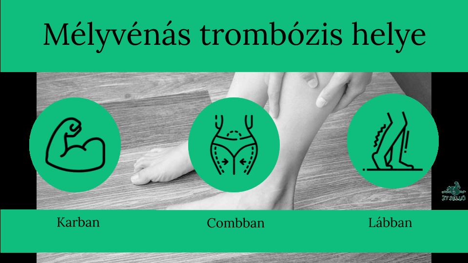ízületi fájdalom a lábakban és a karokban hogyan lehet erősíteni a csontok és ízületek gyógyszereit