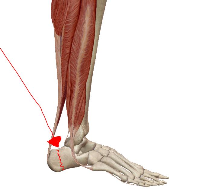 miért fáj a lábak ízületei futás után könyökfájdalom, mit kell tenni